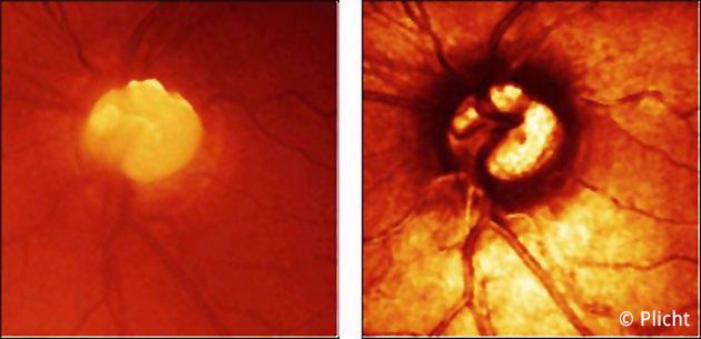 HRT (Heidelberg Retina Tomographie)