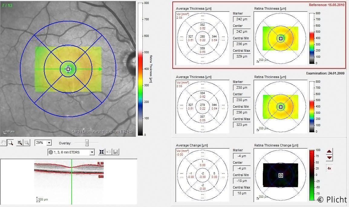 OCT (Optische Cohärenz Tomographie)