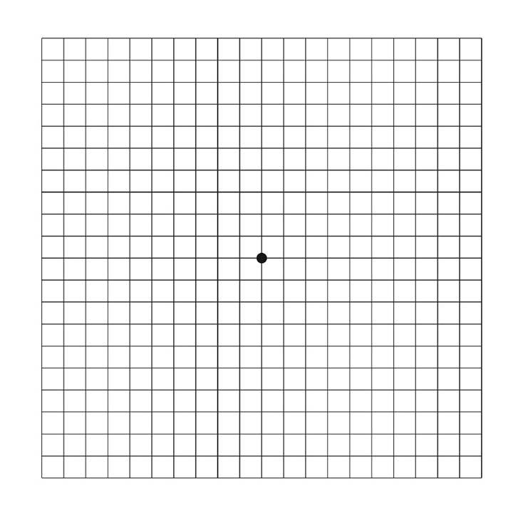 Amsler-Test – Gesundes Auge
