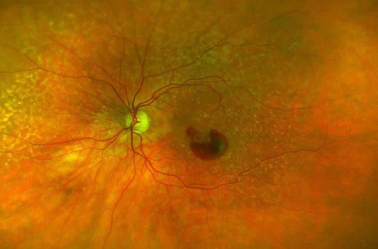 @Bayer – Netzhautbild feuchte AMD mit Blutung